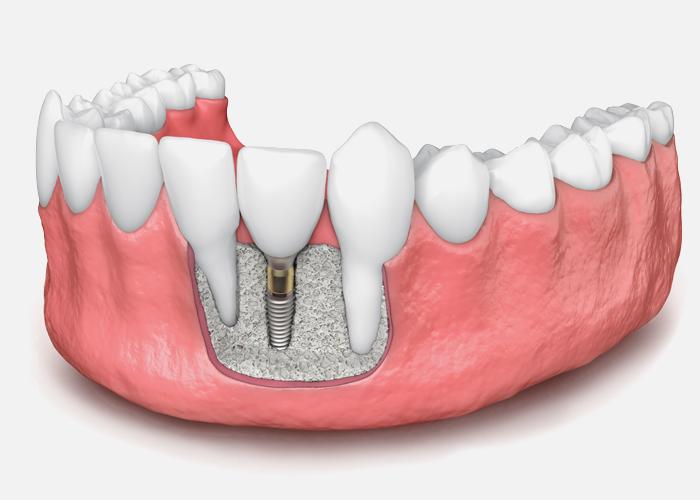 bone-graft-for-dental-implant-model