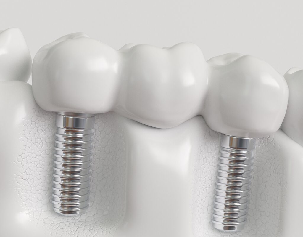dental-implant-bridge